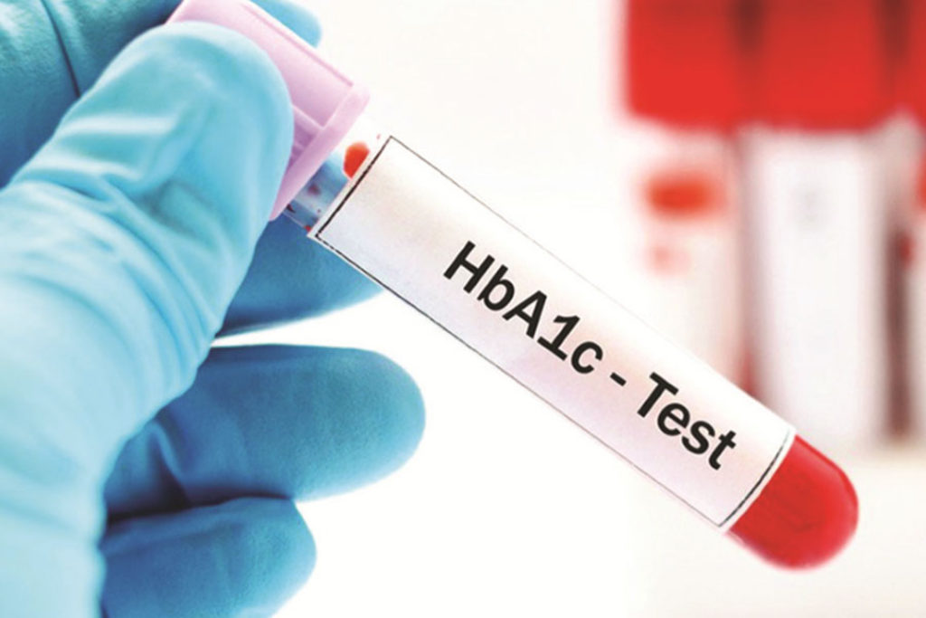 nguyên lý xét nghiệm hba1c là gì