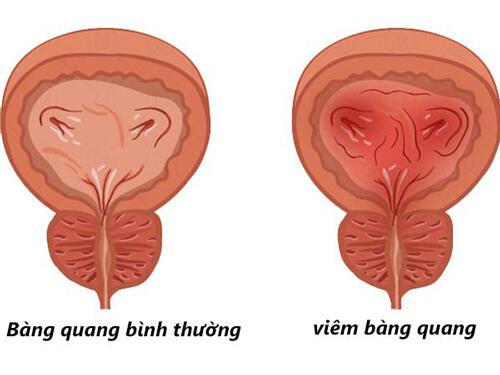 So sánh Thành Bàng quang bình thường và thành bàng quang dày bị viêm