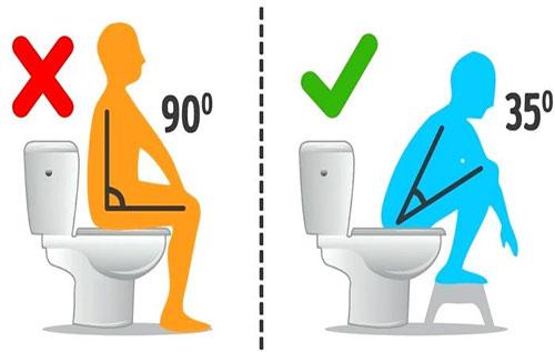 Bị trĩ nên ngồi như thế nào để hỗ trợ điều trị bệnh?