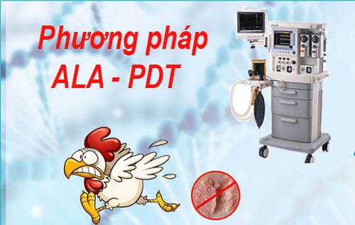 Điều trị sùi mào gà bằng phương pháp ALA-PDT hiệu quả