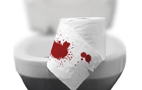 Đại tiện ra máu là dấu hiệu điển hình của bệnh trĩ ngoại