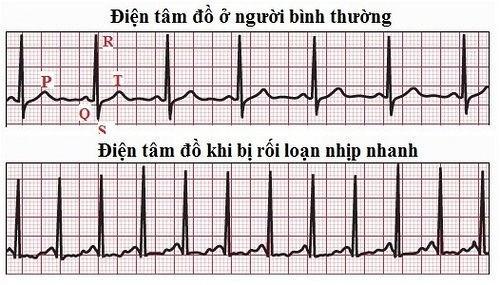 nhịp tim nhanh, nhip tim chậm