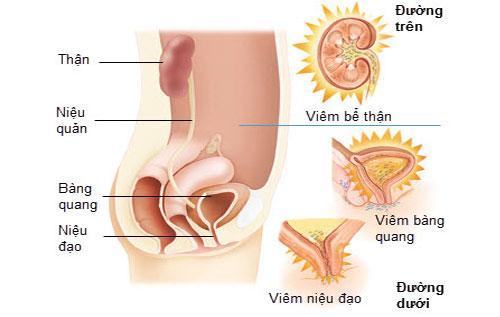 Bệnh viêm tiết niệu nữ giới là gì?