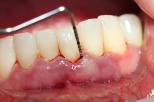 thuốc trị sưng nướu răng