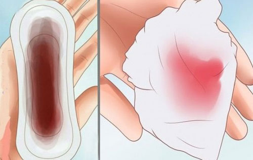 Khí hư có màu đỏ và nâu là dấu hiệu của bệnh gì?
