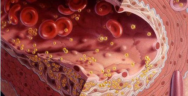 triglyceride trong máu là gì